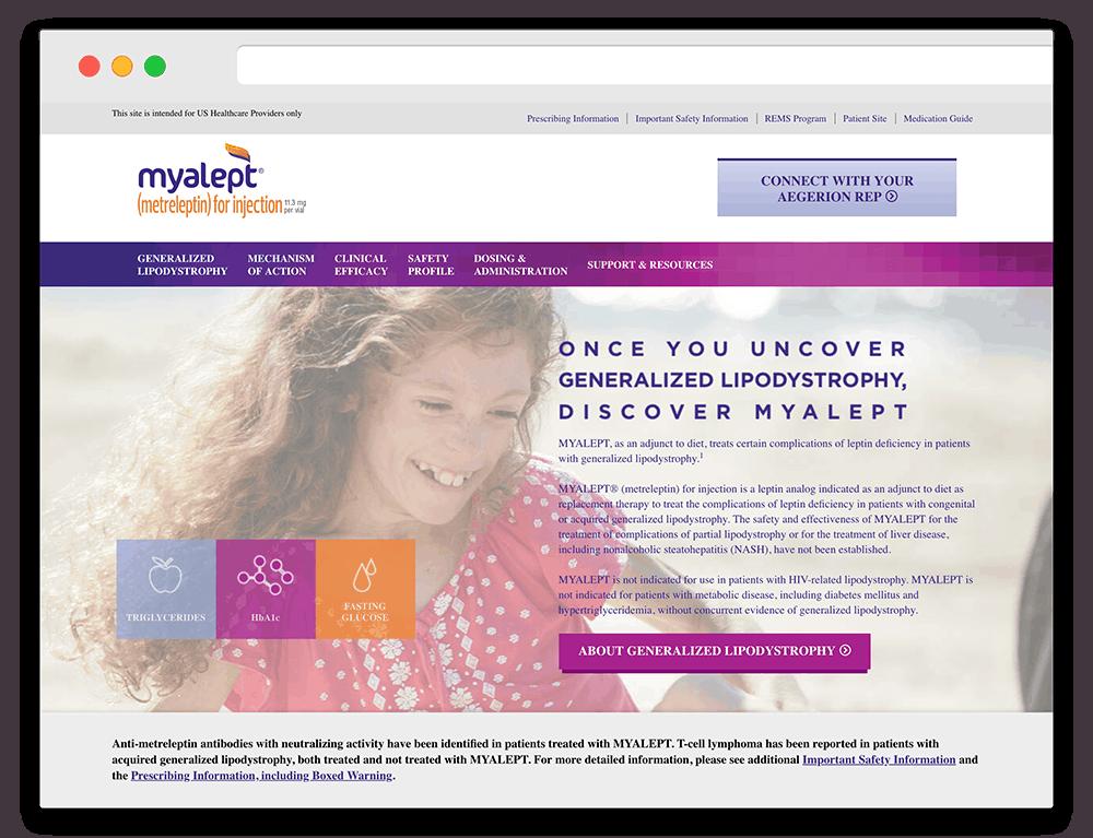 Myalept Pro
